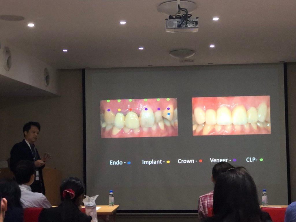 永和植牙專家 何家銘醫師受邀Ankylos 講師會議